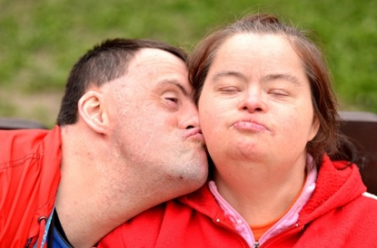downsyndrome2
