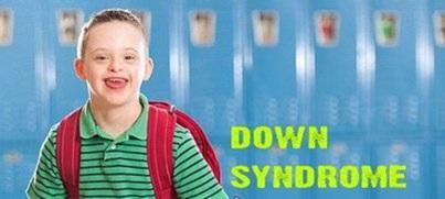 downsyndromeza