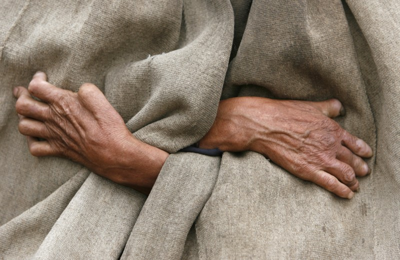 The hands of a leper from the Yi ethnic minority are pictured as he stands outside his house in Dayingpan Village